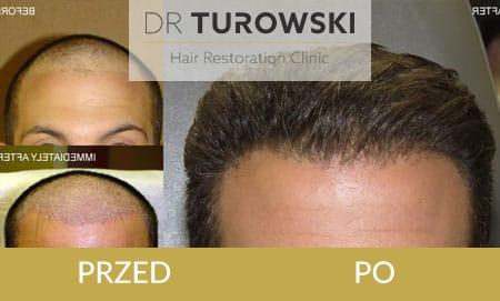 przeszczep włosów przed i po katowice