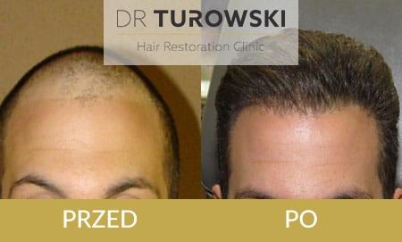 przeszczep włosów koszt zabiegu katowice