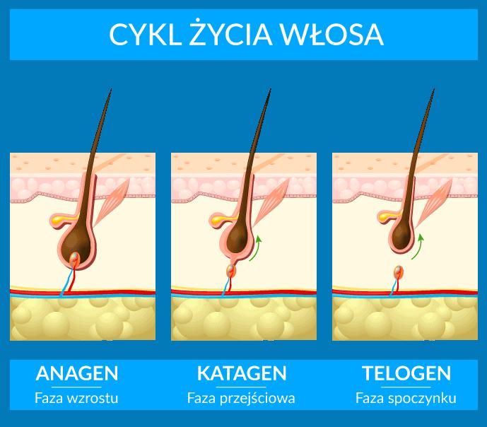typy łysienia