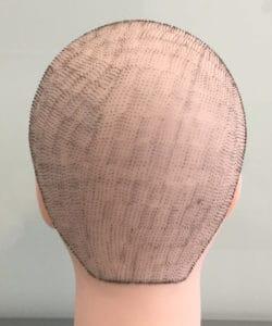 koszt przeszczepu włosów