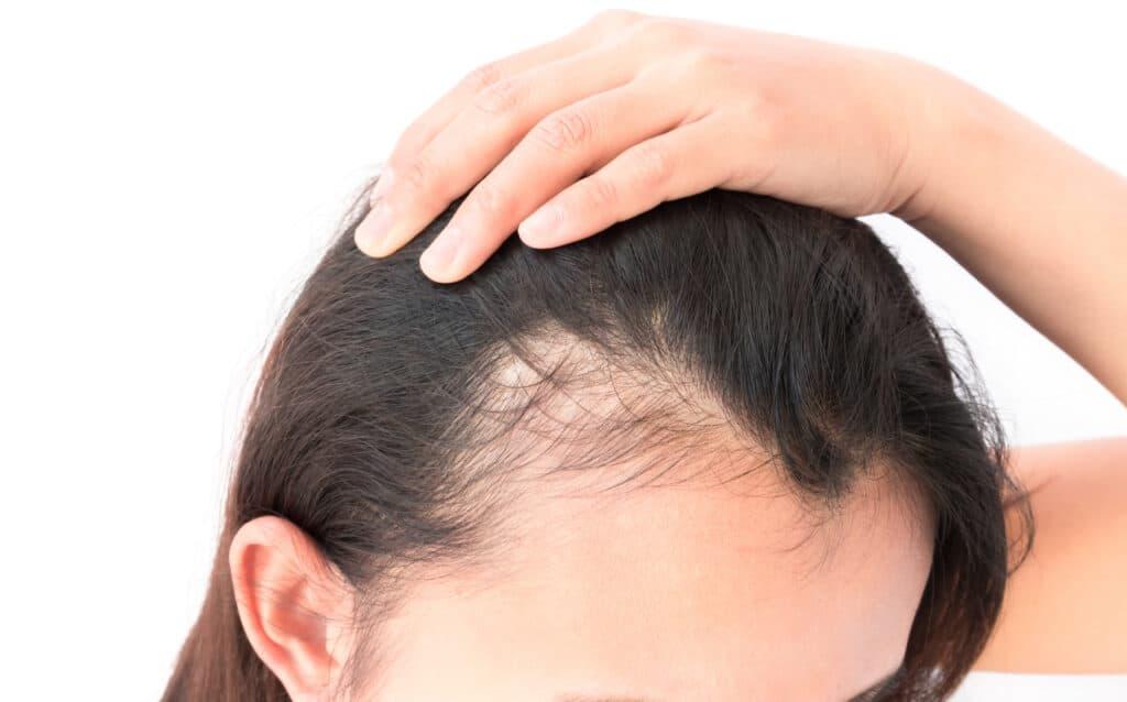 kobieta z odgarniająca włosy z widocznymi zakolami
